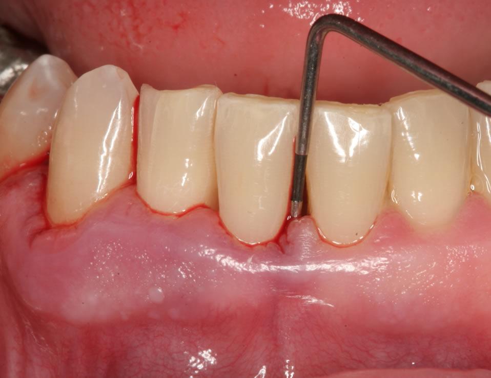 periodontist_pic